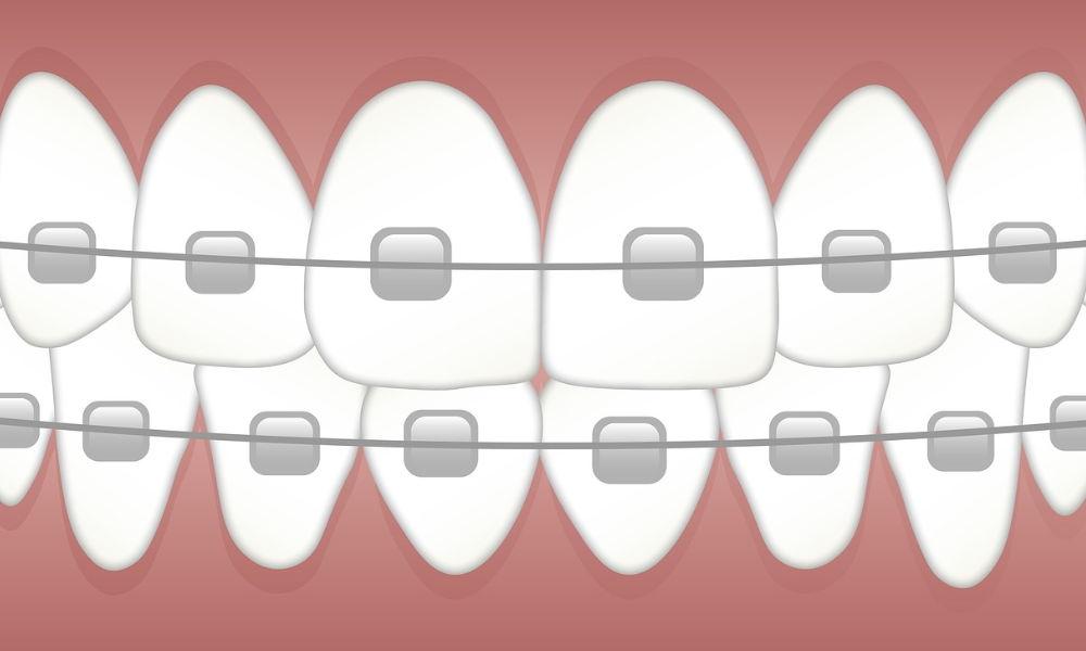 치아 교정