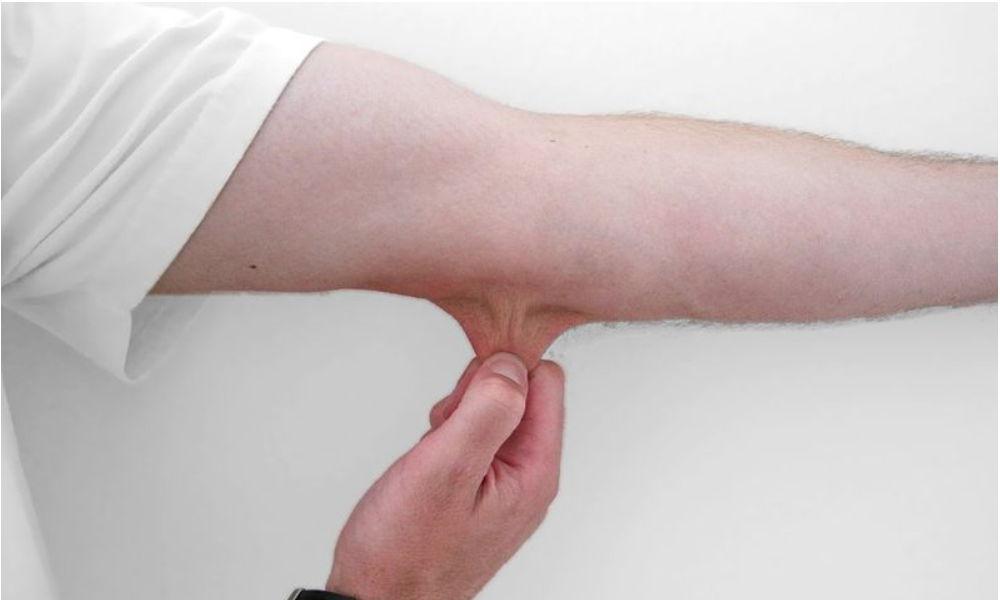 팔꿈치 피부