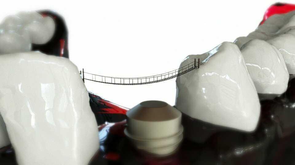 치아 교정 비용